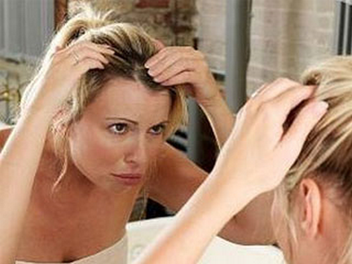 itchy scalp and hair loss 3