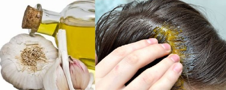 Image of garlic oil and using it for hair loss treatment